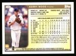 1999 Topps #20  Kerry Wood  Back Thumbnail